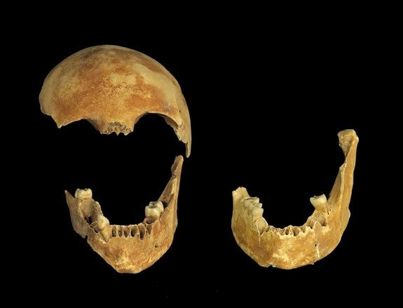 A skull exposed during the excavation of an 8,500-year-old well in Israel. Archaeologists don't know how two people ended up at the bottom of the well.
