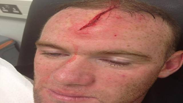 World Cup - Rooney posts head wound picture online