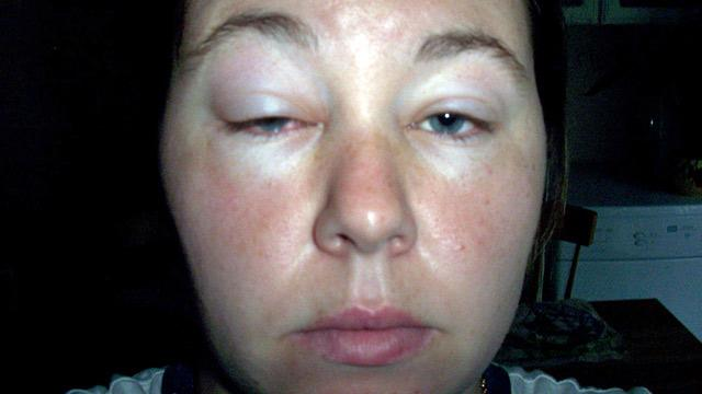 Woman Has Rare Exercise Allergy