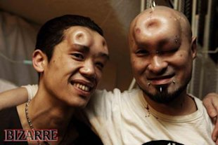 A Facebook bagel head support group shows these two men with saline injections.
