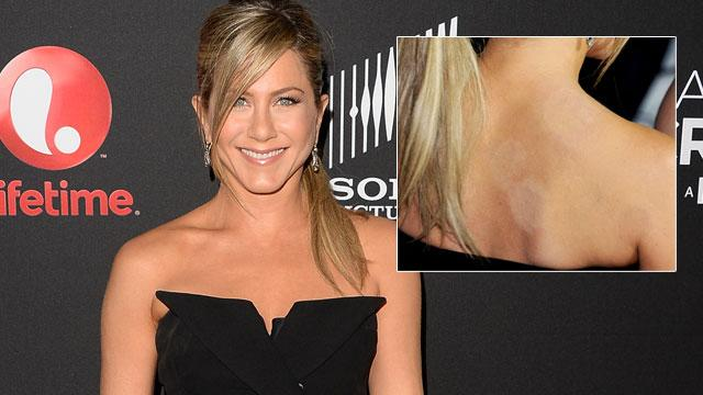 Cupping: Should You Follow Paltrow, Simpson?