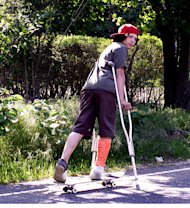 teen cast broken leg skateboard