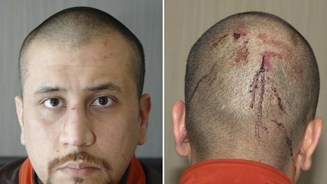 George Zimmerman trial and aftermath