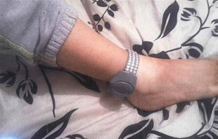 Rebecca Gallanagh's blinged-out anklet. We're not sure it's an improvement. (Photo: Caters News Service)
