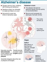 Graphic fact file on Alzheimer's disease, accountable for about two thirds of dementia cases worldwide