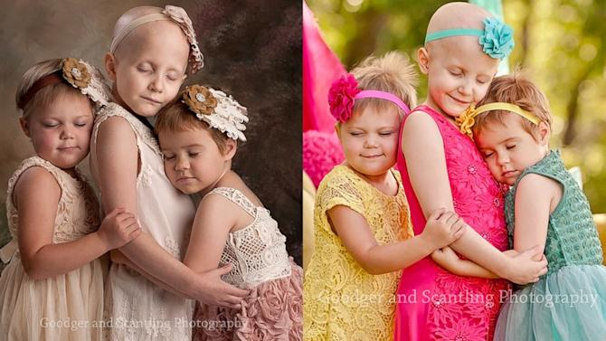 Cancer-Stricken Girls Celebrate Remission With Photo Re-Do