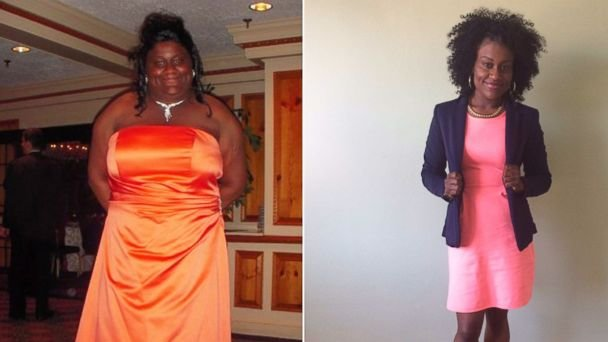 Judith Anthony is shown before and after her dramatic weight loss.