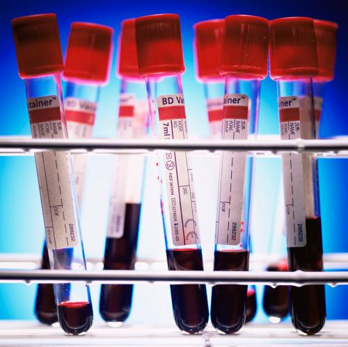 Is This The'Best' Blood Type?