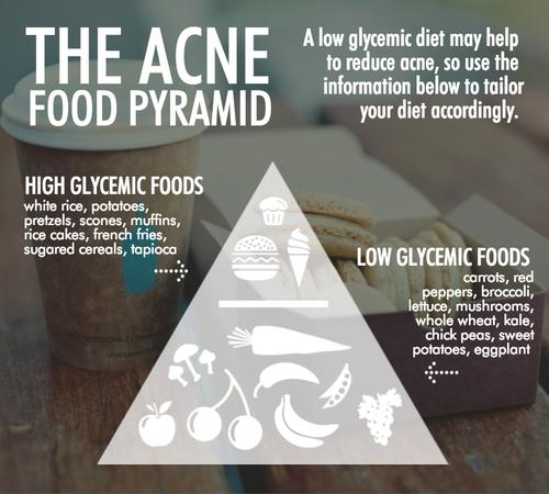 Acne Food Pyramid Reveals How To Eat For Clear Skin