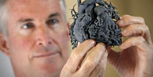 3D-Printed Model Heart Helps Doctors Save a Little Girl's Life