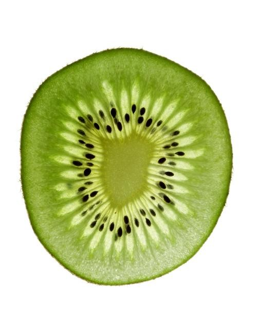 Kiwis, We Love You Just as You Are