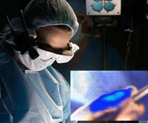 Surgeons Testing Glasses That Make Cancer Cells Glow Blue