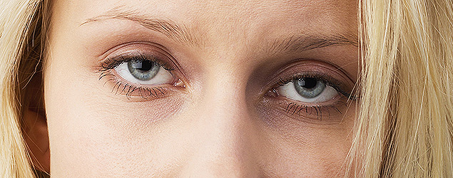 The real reason why you have dark circles under the eyes