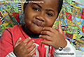 Little boy gets double hand transplant