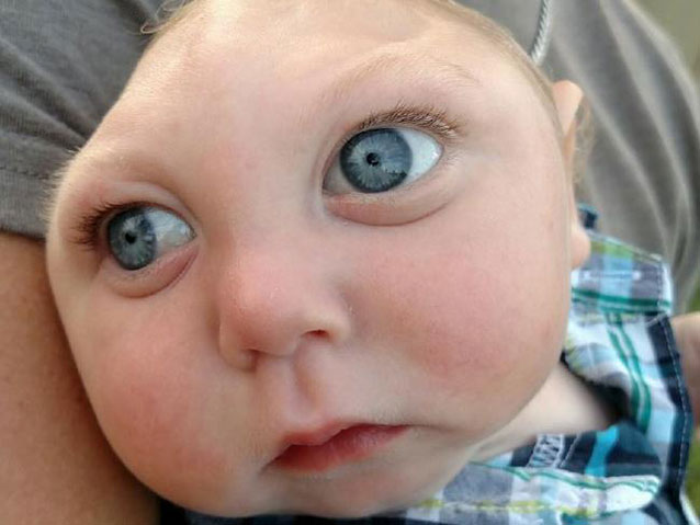 Jaxon has Anencephaly a condition that causes malformations of the skull and brain. Source Supplied