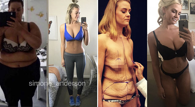 ... joy of skin removal surgery after 92kg weight loss - Yahoo New Zealand