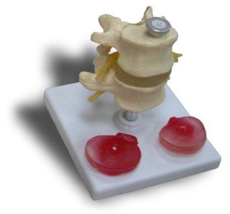 JP-207成人病變腰椎模型實用的人體模型人骨模型骨骼模型骨架模型教學模型局部脊椎模型