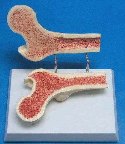 JP-502成人股骨骨質疏鬆模型實用的人體模型人骨模型骨骼模型關節模型教學模型股骨模型