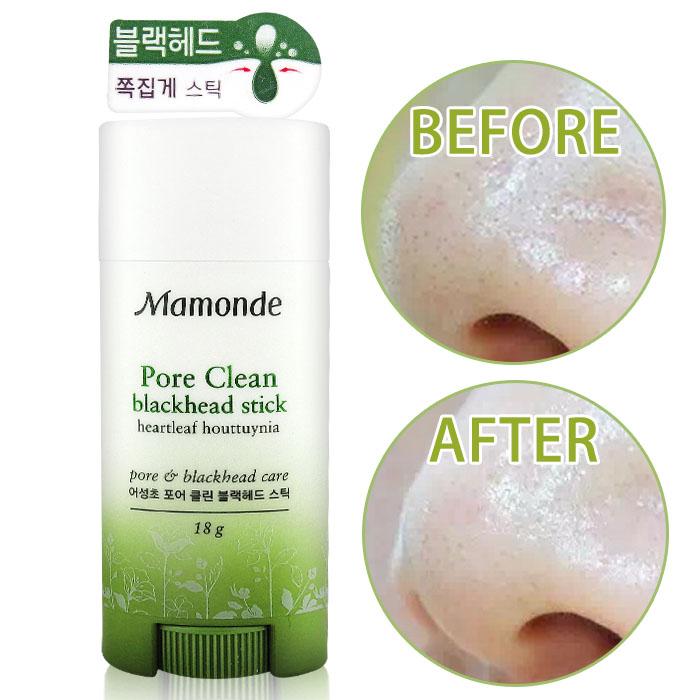 韓國Mamonde去黑頭粉刺魔法棒18g 86小舖粉刺棒
