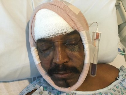 Dhoruba bin Wahad was hospitalized after the Aug. 8 attack with ...