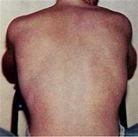 Dengue fever - Wikipedia