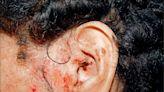 耳部帶狀疱疹 病毒會傳染 - 銀髮天地 - 自由健康網