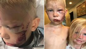 Brave Boy, 6, Left in Stitches and Hailed as Hero After Saving Little Sister From Dog Attack
