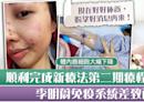 【抗癌鬥士】李明蔚完成第二期抗癌新療法 免疫系統弱面部生蛇:真的很痛 - 香港經濟日報 - TOPick - 娛樂