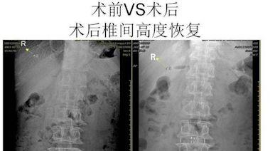 腰椎問題也可微創,山大齊魯醫院(青島)為多名患者實施手術