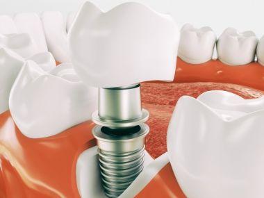 植牙療程長,術前評估外,這一點更重要