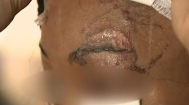 Woman says man tried to bite eye out during assault at NY liquor store