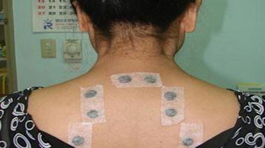 過敏性患者好幫手!安南醫院中醫三伏貼7/21起跑 - 即時新聞 - 自由健康網