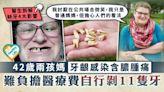 牙齒健康︳42歲兩孩媽牙齦感染含膿腫痛 難負擔醫療費自行剝11隻牙︳缺牙4大影響 - 晴報 - 健康 - 其他疾病