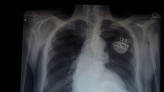 Struggling to die in peace: A family fights to turn off a pacemaker
