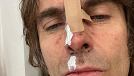 Liam Gallagher shares photo after 'helicopter fall'