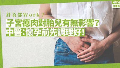 子宮瘜肉對胎兒有無影響?中醫:懷孕前應先按證型調理和治療!針灸幫到手?|健康好人生 health