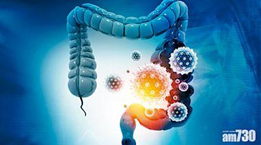 糞便細菌基因檢測 無入侵篩查大腸癌及息肉 - 癌症 - am730