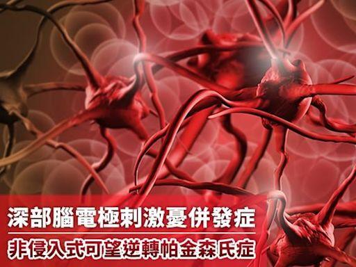 NOW健康/電極刺激憂併 非侵入式可望逆轉帕金森氏症