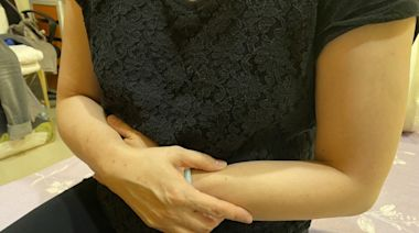 6旬婦腹部腫大如懷孕7個月 檢查竟是感染C型肝炎 - 即時新聞 - 自由健康網