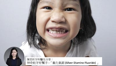 口腔健康|神奇蛀牙好幫手-氟化氨銀Silver Diamine Fluoride|陳思昕牙科醫生 | 牙科保健