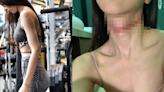 32歲李元玲吊頸不遂過去一個月 IG分享彈琴片報平安
