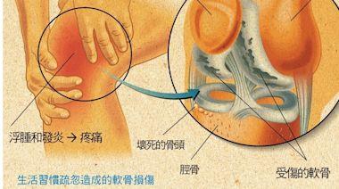 這些膝蓋症狀你中鏢了嗎?忽略日常小細節,當心造成膝蓋大傷害 - BabyHome 新知大耳朵
