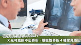 X光看不到的骨折!每十個患者就有一個「隱匿性骨折」 4種原因最常見