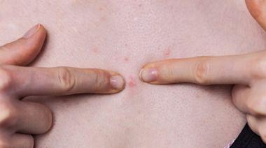 胸前長痘痘小心是乳癌警訊! 醫列「致癌習慣」:快戒吧