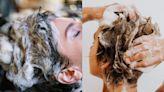 防疫只是狂洗頭不夠!皮膚科醫師:洗髮精要能清除頭皮細菌是重點