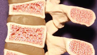 世界骨質疏鬆日|家計會呼籲年長婦女接受骨質密度檢查(附中醫/營養師預防骨質疏鬆症飲食貼士)
