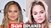 What did Chrissy Teigen look like before and after plastic surgery?