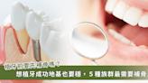 為什麼植牙還需要補骨手術?常見補骨方式一次看懂