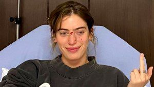 Ewan McGregor's Daughter Shares Horrifying Photos After Facial Dog Bite
