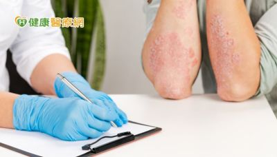 世界乾癬日:兼顧皮表乾癬與併發症 落實全方位健康管理